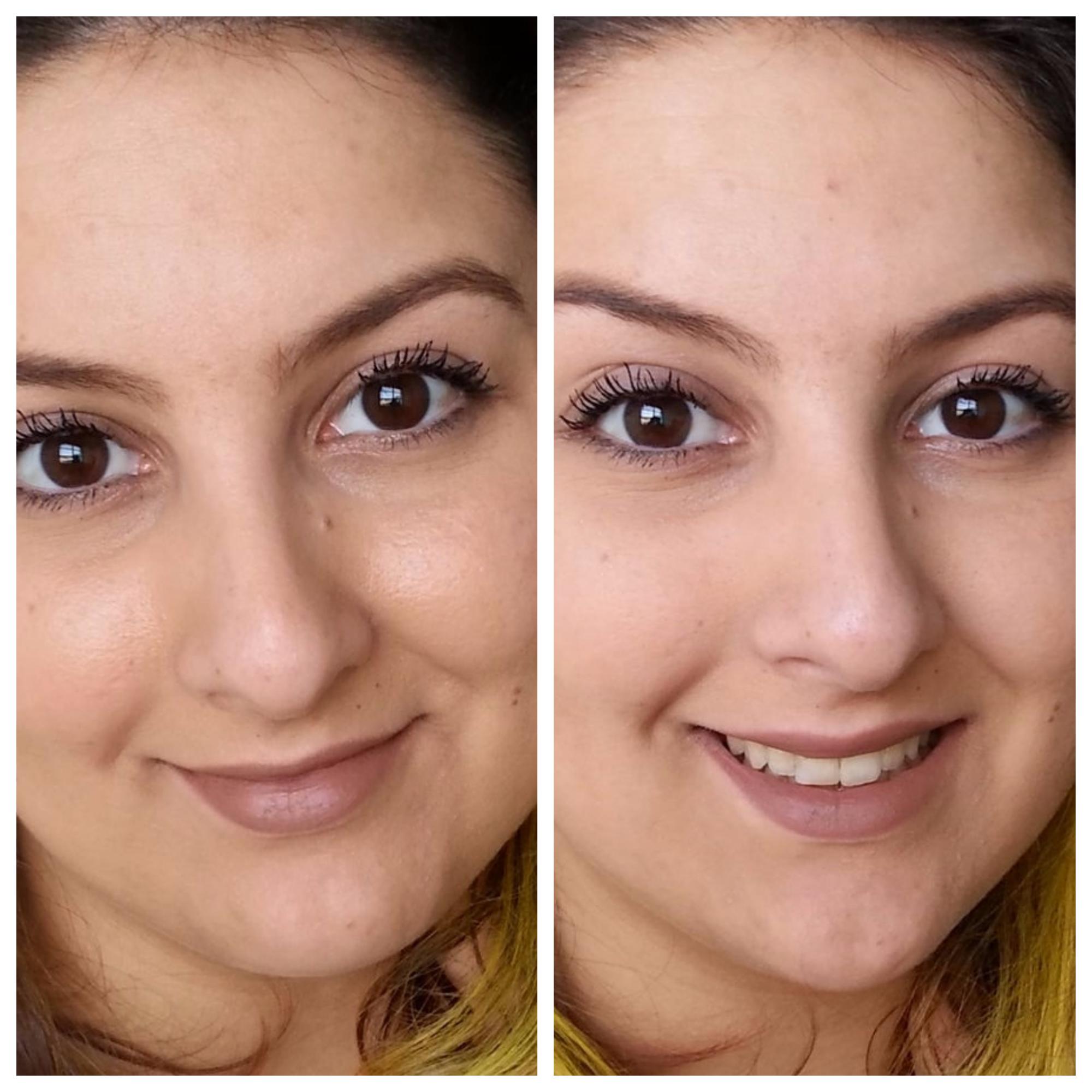 lenço removedor de oleosidade antes e depois